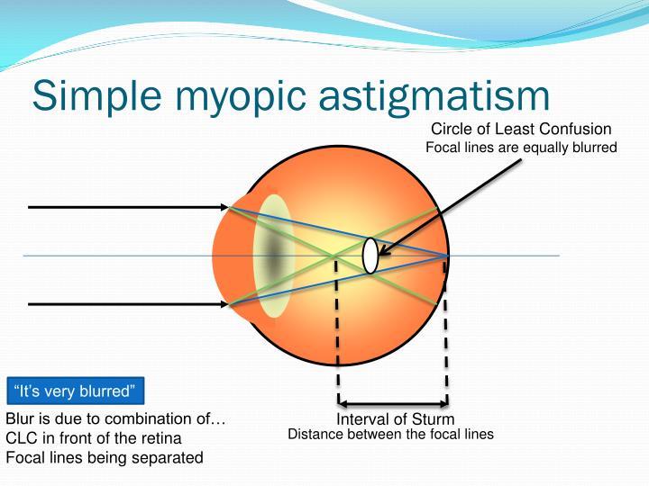 Simple myopic astigmatism