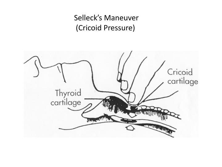 Selleck's Maneuver