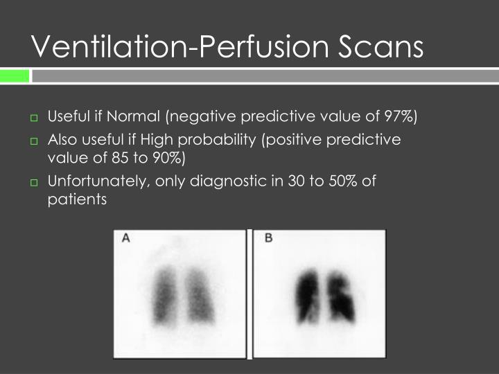 Ventilation-Perfusion Scans