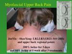 myofascial upper back pain