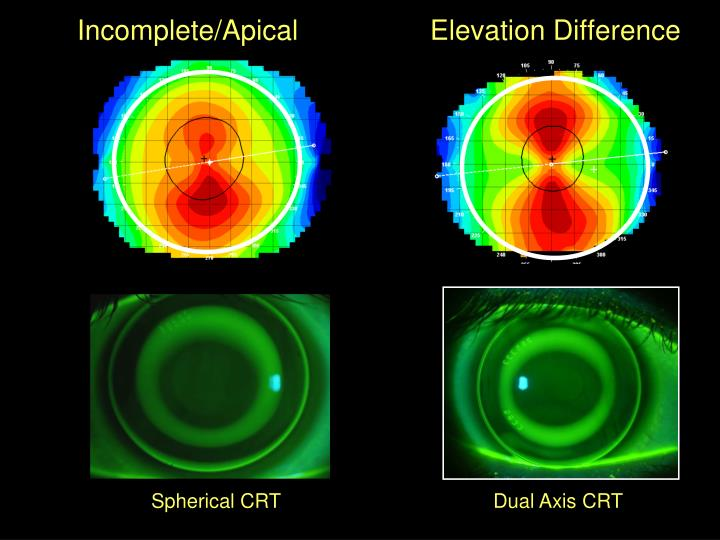 Incomplete/Apical                 Elevation Difference