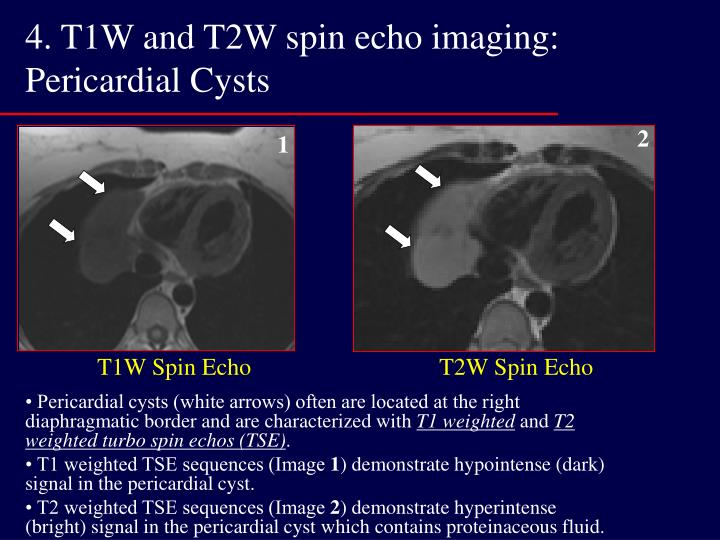 4. T1W and T2W spin echo imaging: Pericardial Cysts