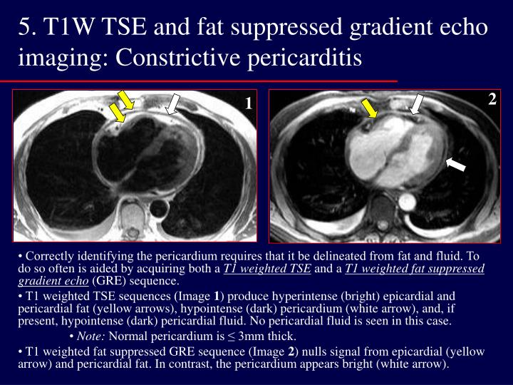 5. T1W TSE and fat suppressed gradient echo imaging: Constrictive pericarditis