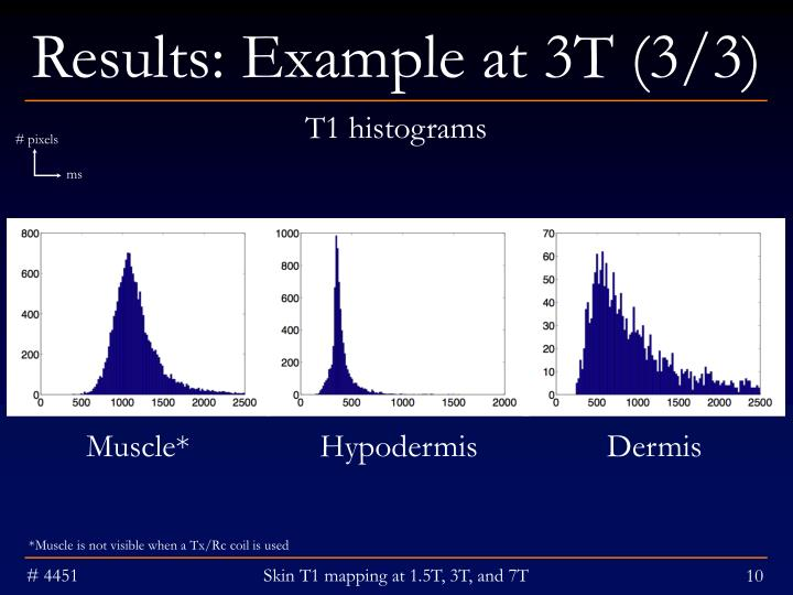 Results: Example at 3T (3/3)