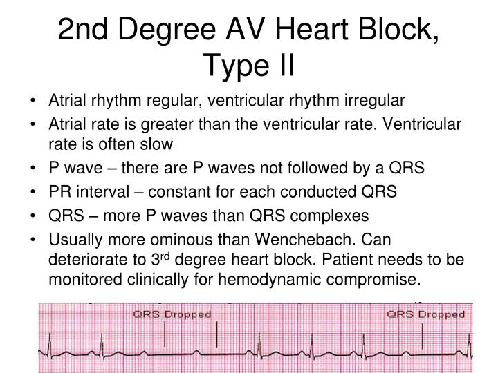 2nd Degree AV Heart Block,  Type II