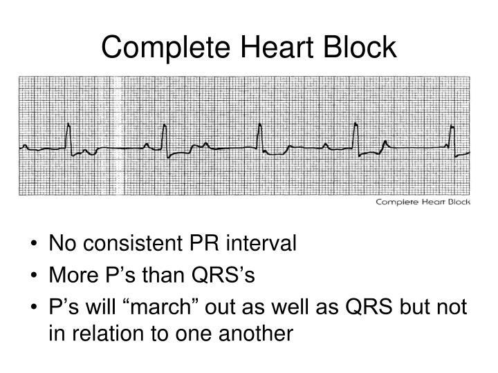 Complete Heart Block