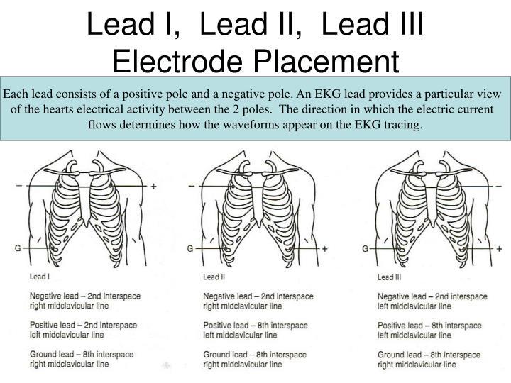 Lead I,  Lead II,  Lead III  Electrode Placement