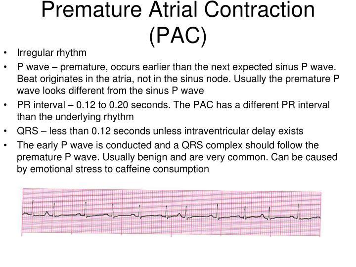 Premature Atrial Contraction (PAC)