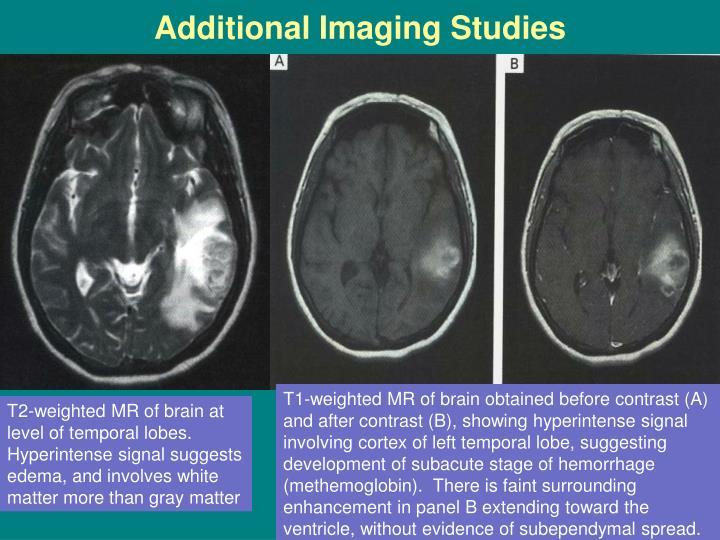 Additional Imaging Studies