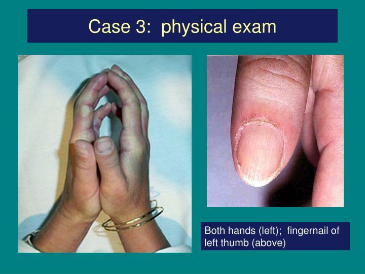 Case 3:  physical exam