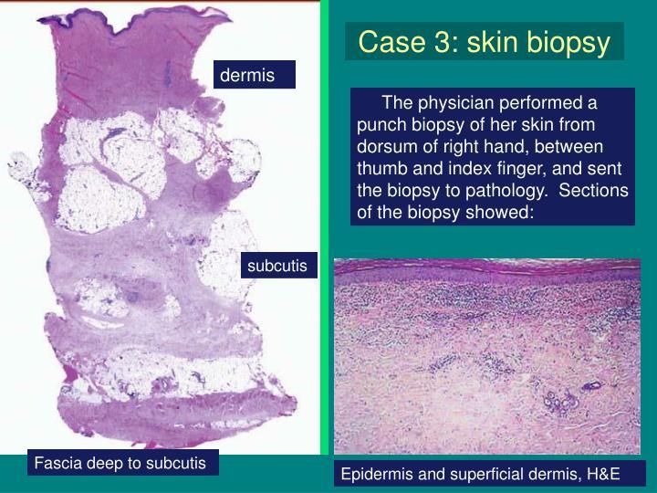 Case 3: skin biopsy