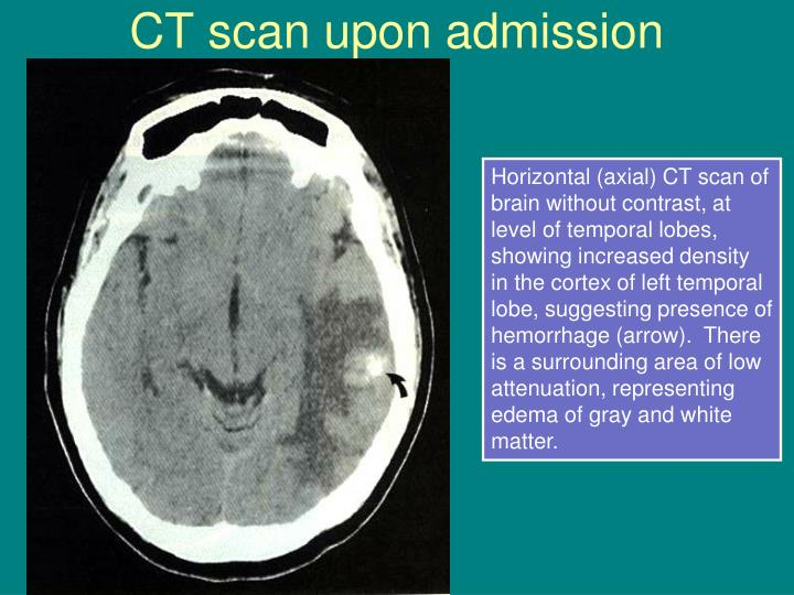 Ct scan upon admission