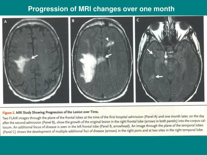 Progression of MRI changes over one month