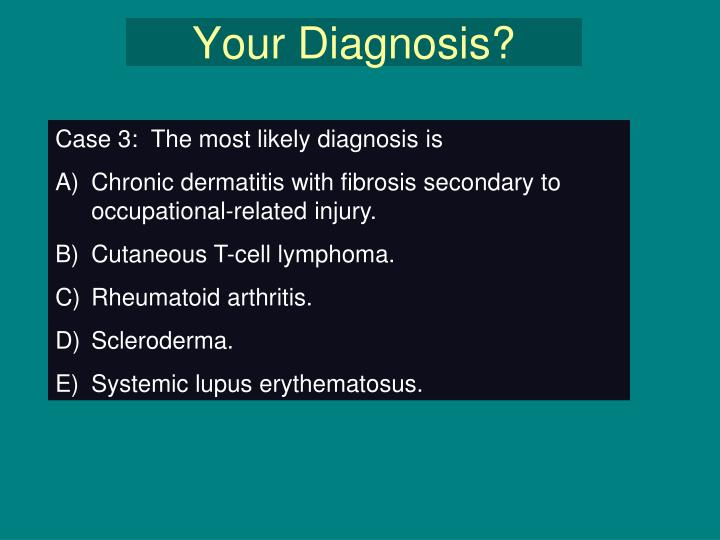 Your Diagnosis?