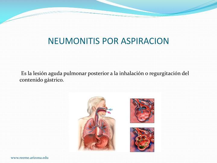 NEUMONITIS POR ASPIRACION