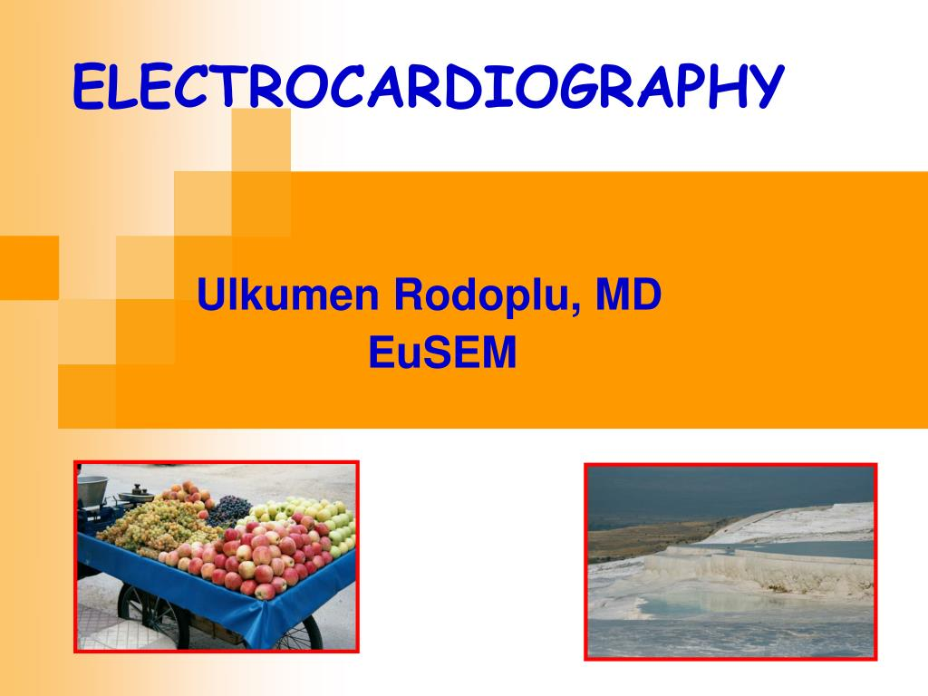 Ppt Ulkumen Rodoplu Md Eusem Powerpoint Presentation Id3257106 Invention Story Of Electrocardiography Ecg By Willem Einthoven N