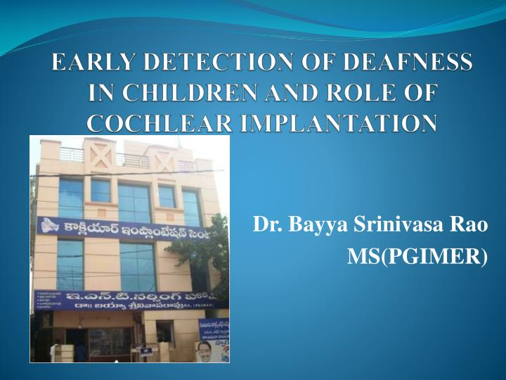 early detection of deafness in children and role of cochlear implantation n.
