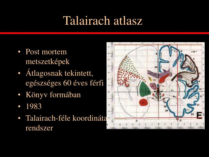 Talairach atlasz