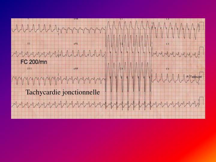 Tachycardie jonctionnelle