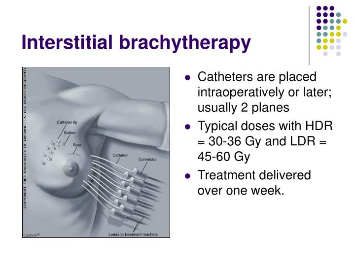 Interstitial brachytherapy