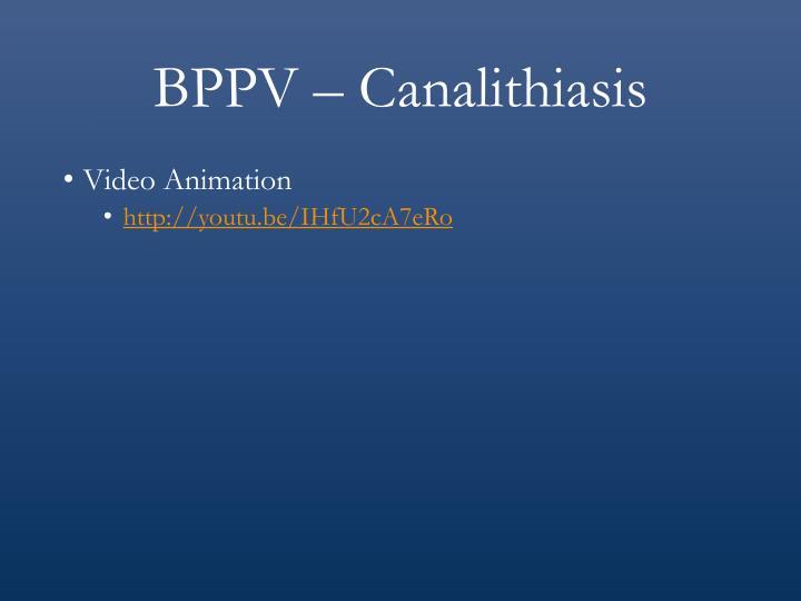 BPPV – Canalithiasis