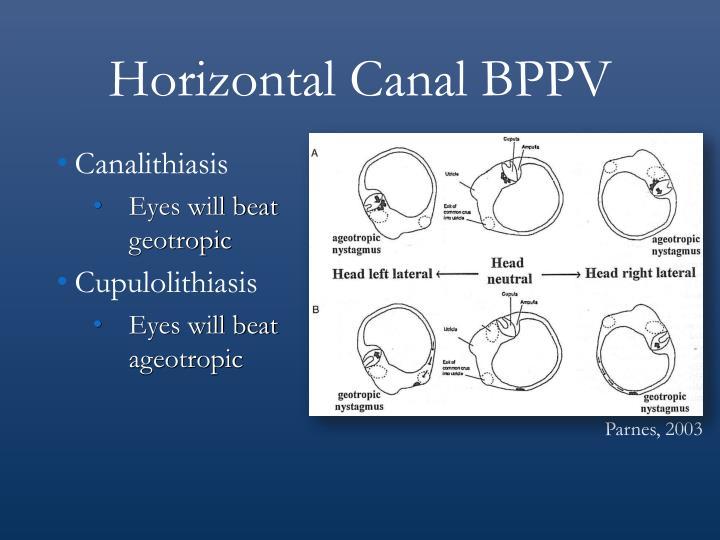Horizontal Canal BPPV