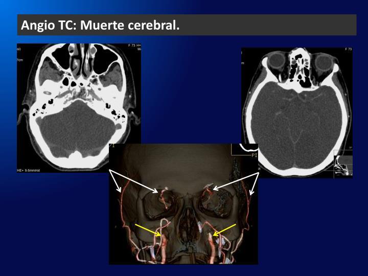 Angio TC: Muerte cerebral.
