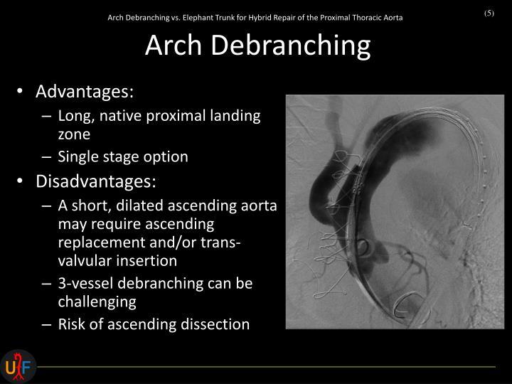 Arch Debranching