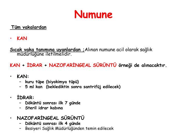 Numune