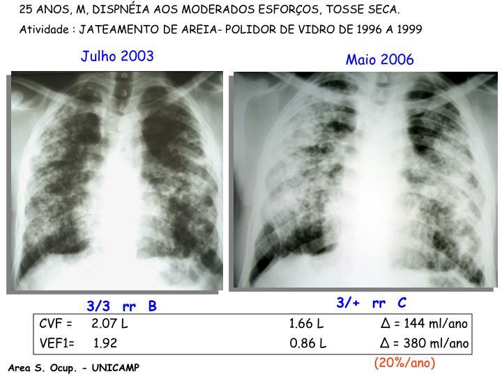 25 ANOS, M, DISPNÉIA AOS MODERADOS ESFORÇOS, TOSSE SECA.