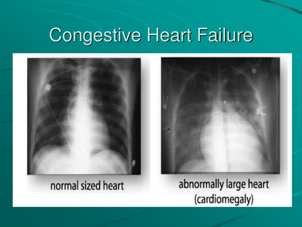 PPT - Congestive Heart Failure Case Study PowerPoint Presentation - ID:3281529