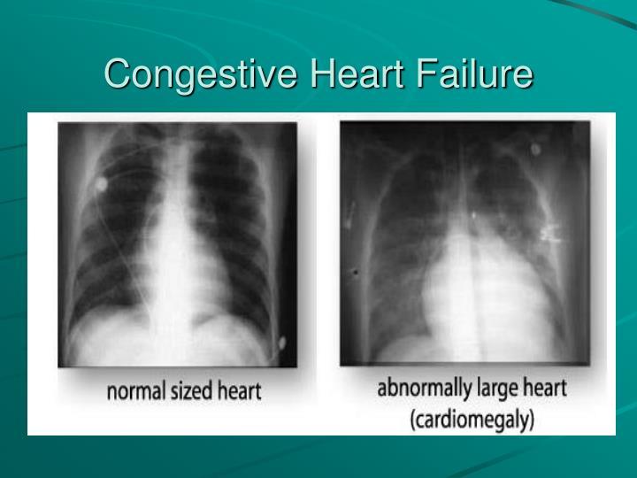 case study congestive heart failure You are here: home / case studies / case study 2  three or more separate episodes of acute congestive heart failure within a consecutive 12 month period (see 4 .