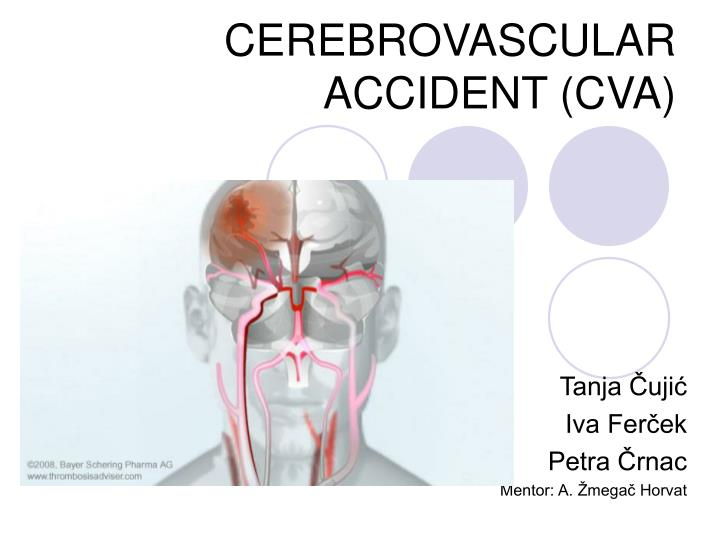 causes and types of cerebrovascular accidents cva Stroke is a leading cause of death in the united states, killing more than 130,000 americans each year—that's 1 of every 20 deaths 1 public health officials and other health professionals can find up-to-date facts, statistics, maps, and other information related to stroke in these reports and resources.