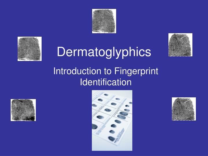 dermatoglyphics n.