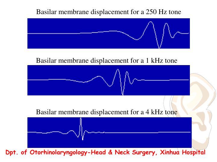 Basilar membrane displacement for a 250 Hz tone