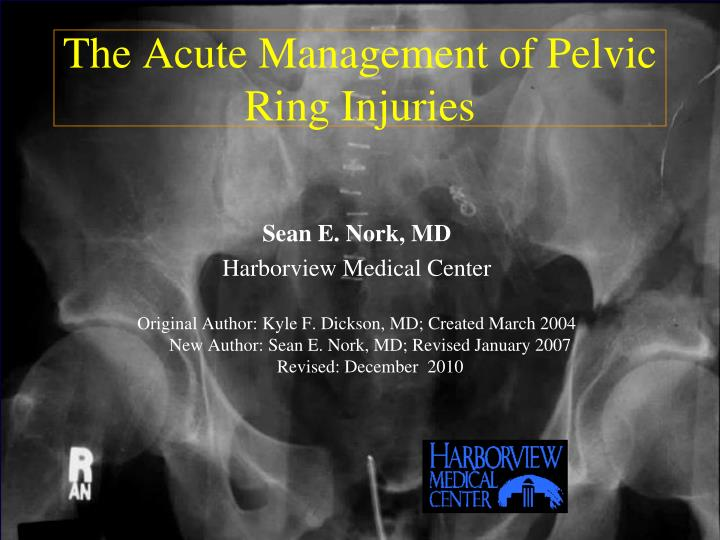 the acute management of pelvic ring injuries n.