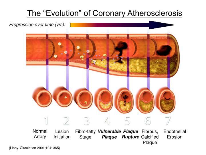 the evolution of coronary atherosclerosis n.