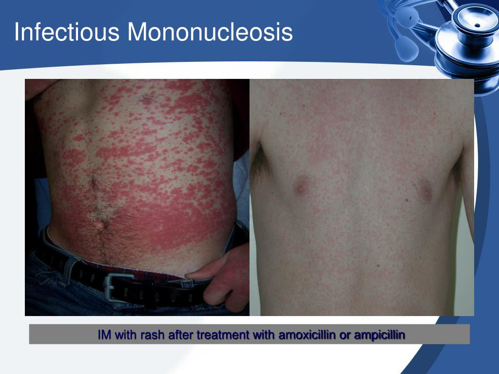 PPT - Infectious Mononucleosis  PowerPoint Presentation - ID