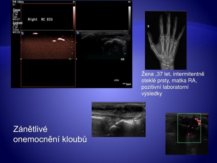 Žena ,37 let, intermitentně oteklé prsty, matka RA, pozitivní laboratorní výsledky