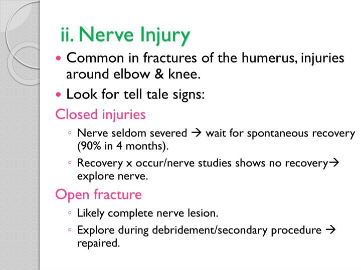 ii. Nerve Injury