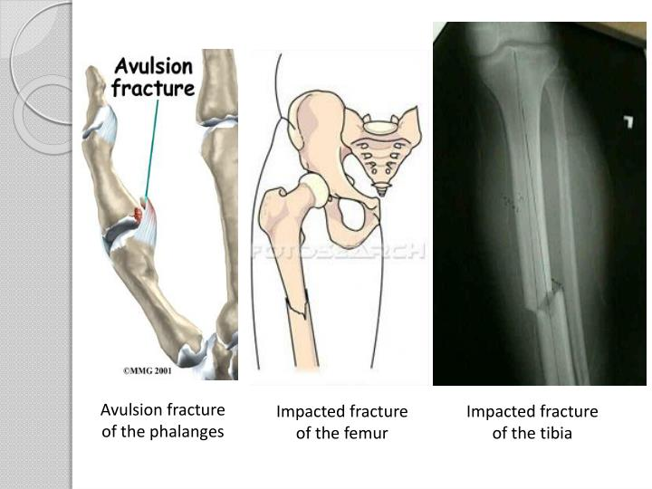 Avulsion fracture of the phalanges