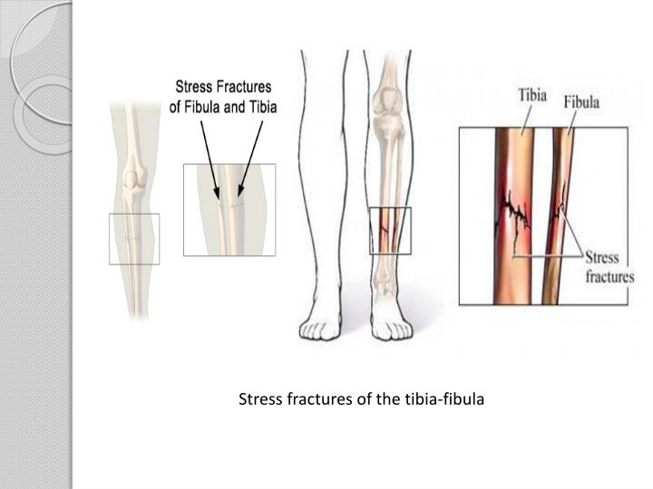 Stress fractures of the tibia-fibula
