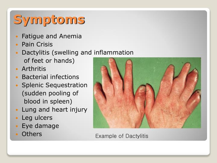 Fatigue and Anemia