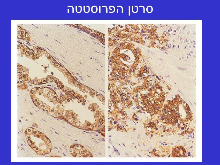 סרטן הפרוסטטה
