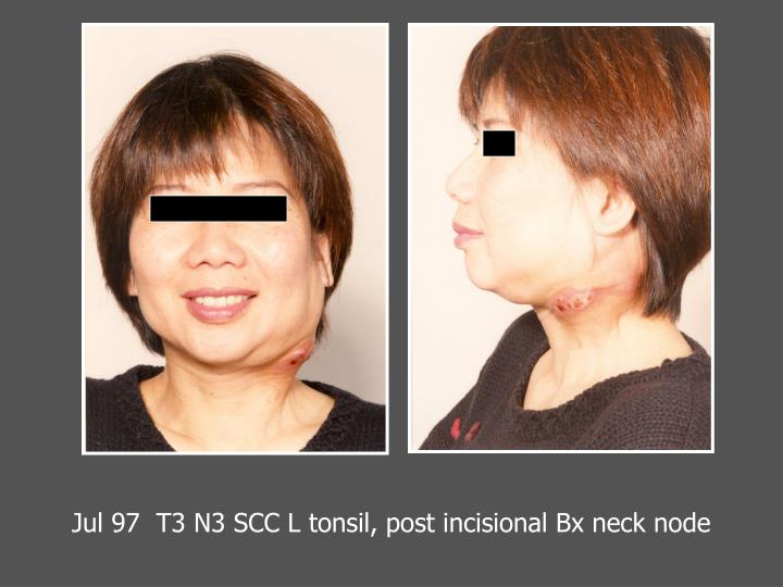 Jul 97  T3 N3 SCC L tonsil, post incisional Bx neck node