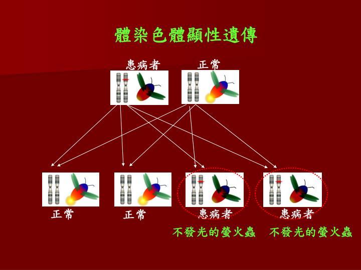 體染色體顯性遺傳