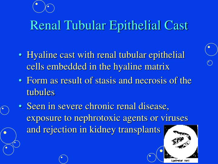 Renal Tubular Epithelial Cast