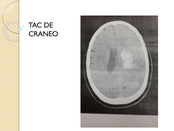 TAC DE CRANEO