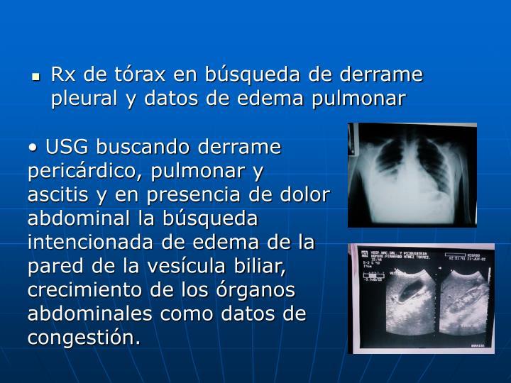 Rx de tórax en búsqueda de derrame pleural y datos de edema pulmonar