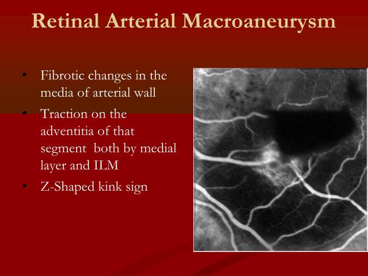 Retinal Arterial Macroaneurysm